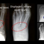 Lisfranc Joint Injury